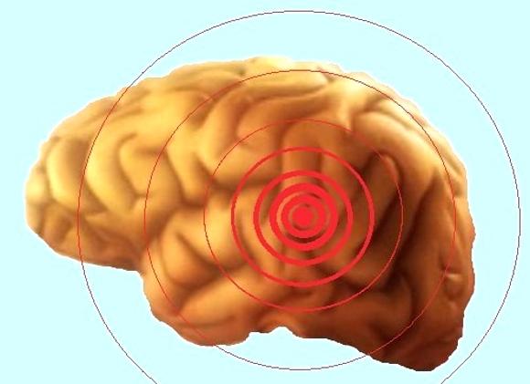 Продолжительность жизни больных раком мозга сильно зависит от времени начала лечения