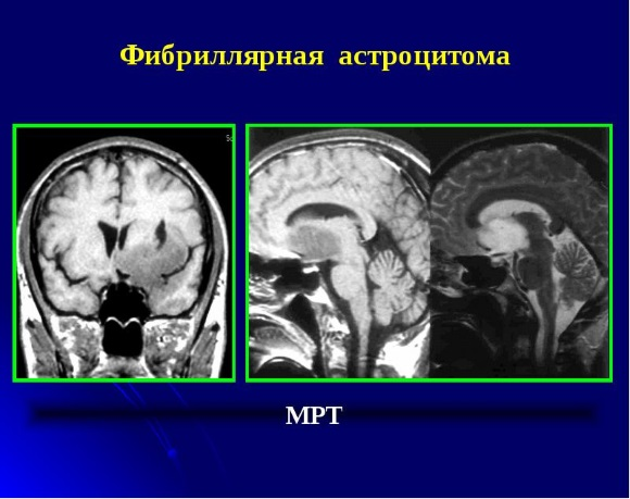 Фибриллярная астроцитома на МРТ