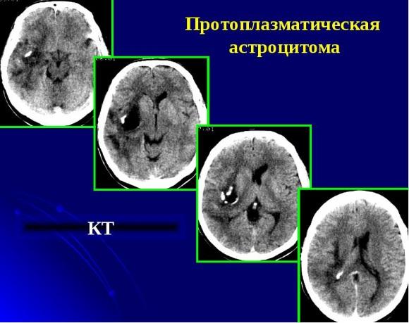 Протоплазматическая астроцитома состоит в основном из опухолевых астроцитов с малым телом и тонкими отростками
