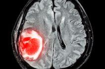 Симптомы рака головного мозга в зависимости от стадии заболевания у мужчин