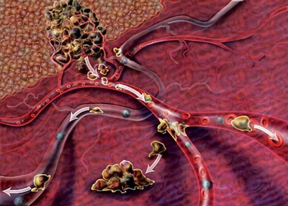 Метастазы существенно нарушают функционирование всех жизненно важных органов и систем