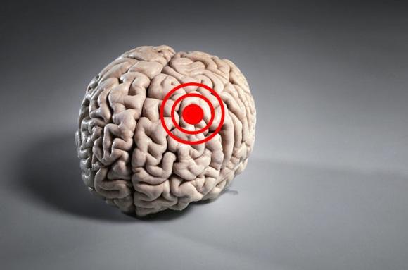Опухоли головного мозга в детском возрасте характеризуются длительным бессимптомным периодом болезни