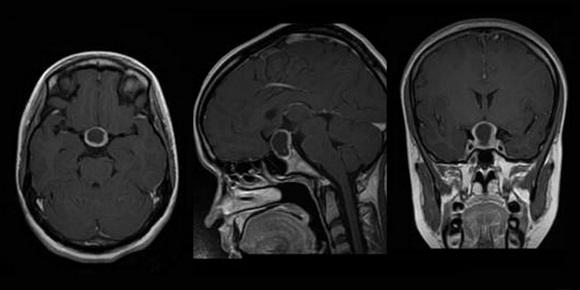 МРТ является ведущим методом нейровизуализации при аденоме гипофиза