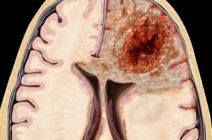 Злокачественные образования головного мозга: разновидности