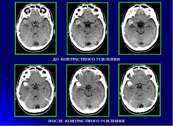 Опухоль, растущая из клеток арахноидального эндотелия