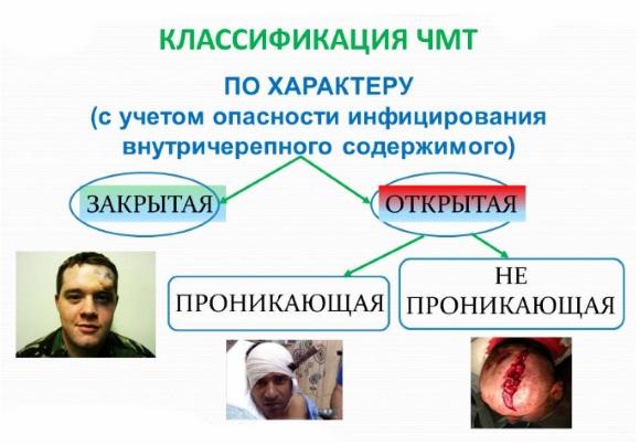 Классификация черепно-мозговых травм по характеру