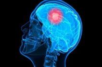 Глиобластома — одна из самых злокачественных опухолей мозга
