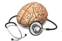Инсульт: признаки, первая помощь, лечение и профилактика