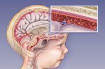 Смертельно опасная инфекция — менингит
