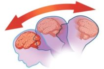 Сотрясение головного мозга — опасные последствия