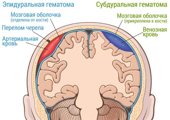 Внутричерепные гематомы