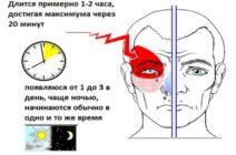Все о кластерных головных болях