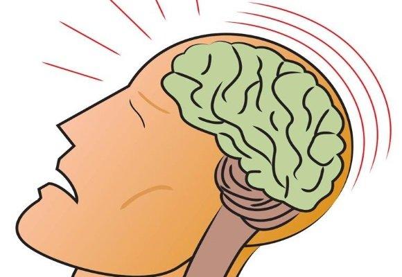 Сотрясение головного мозга характеризуется потерей сознания на короткий период