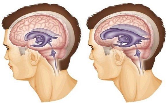 Избыточное скопление цереброспинальной жидкости в желудочковой системе головного мозга