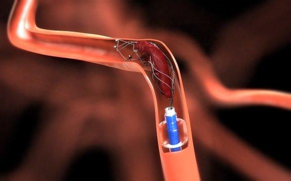 Удаление тромба