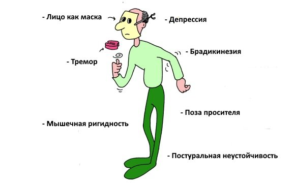 Клиника болезни Паркинсона