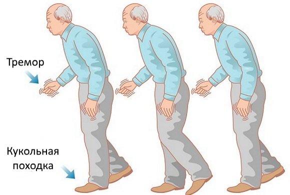 Болезнь Паркинсона – распространенное неврологическое заболевание
