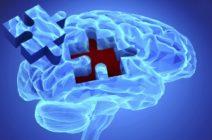 Первые признаки и дальнейшая симптоматика болезни Паркинсона