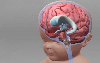 Причины высокого внутричерепного давления у детей и современные методы лечения