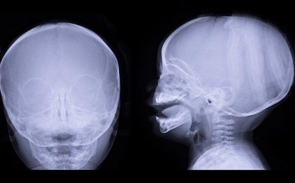 Рентгеновский снимок черепа ребенка с гидроцефалией