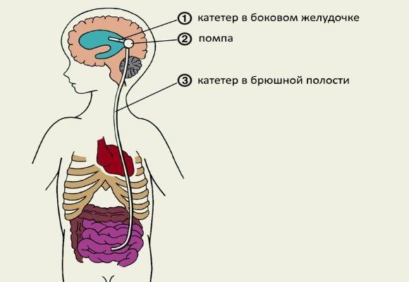 Оперативное лечение гидроцефалии