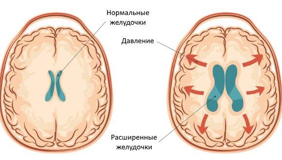 Нормальные и расширенные желудочки головного мозга