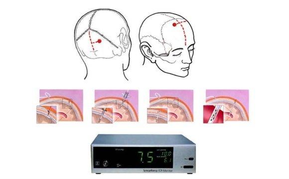 Мониторинг внутричерепного давления