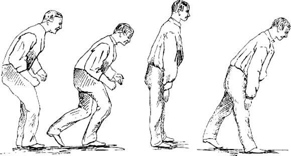 Шаткость походки