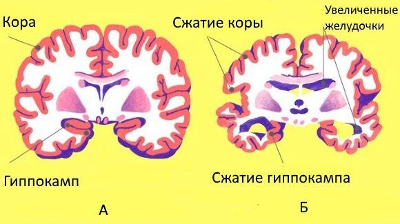 Изменения головного мозга при болезни Альцгеймера