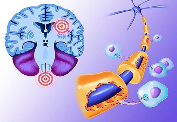 Рассеянный склероз довольно распространенное заболевание