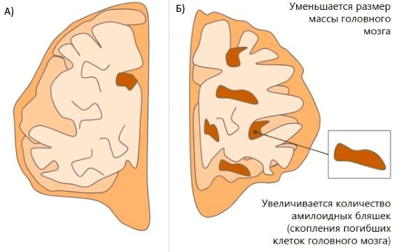 Атрофия головного мозга и накопление амилоидных бляшек