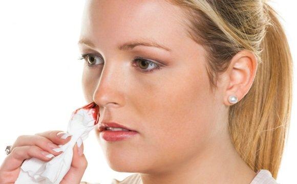 У беременной идет кровь из носа