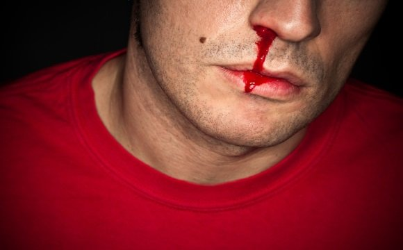 Течет кровь из носу головокружение thumbnail