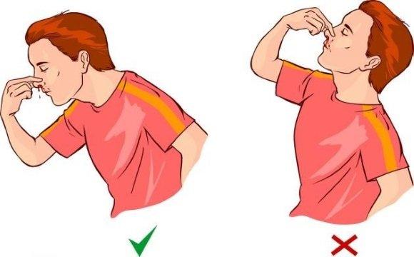 Остановка носового кровотечения