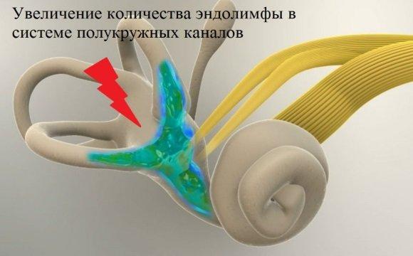 Повышение внутрилабиринтного давления