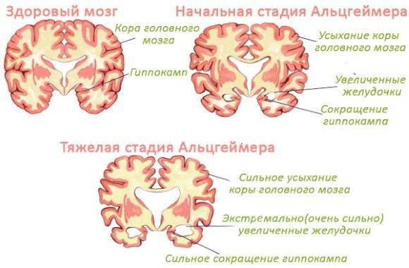 Атрофия головного мозга при БА