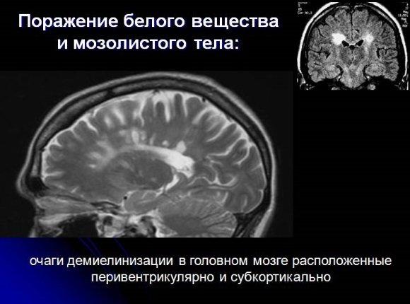 РС на МРТ