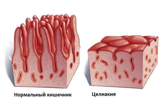 Норма и глютеновая болезнь