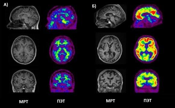 МРТ и ПЭТ КТ в норме и при болезни Альцгеймера