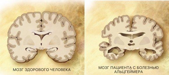 Атрофия головного мозга при болезни Альцгеймера