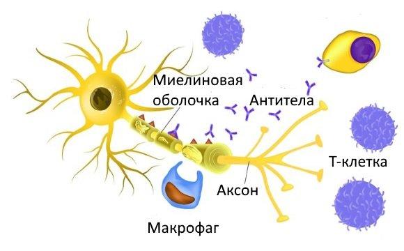 Нейрон с поврежденным миелином