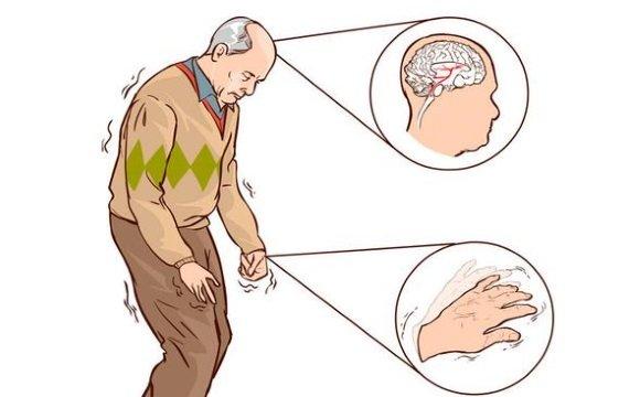Двигательные нарушения при болезни Паркинсона