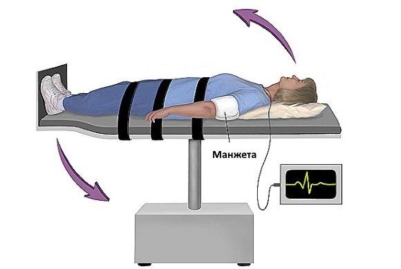 Пассивная ортостатическая проба
