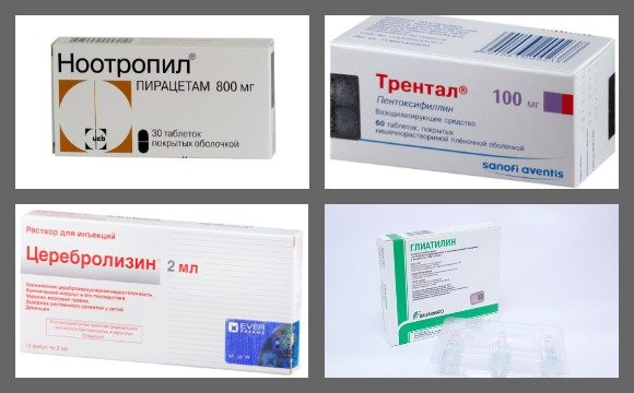 Препараты для лечения ДЭП