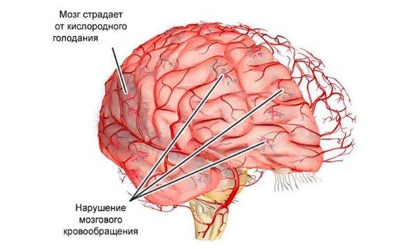 Изменения в головном мозге при ДЭП