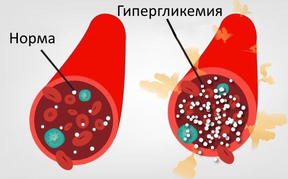 Гипергликемия провоцирует развитие энцефалопатии