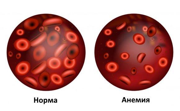 Капля крови в норме и при анемии