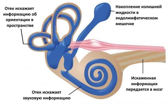 Изменения во внутреннем ухе при болезни Меньера