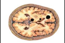 МР-признаки дисциркуляторной энцефалопатии