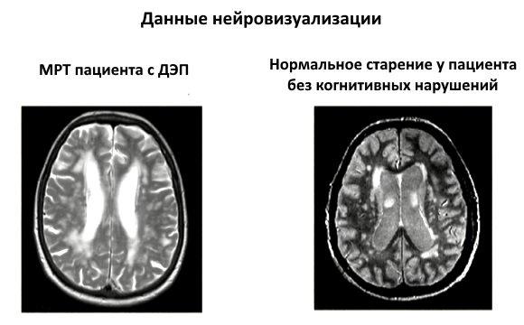 МРТ пациента с ДЭП и при нормальном старении